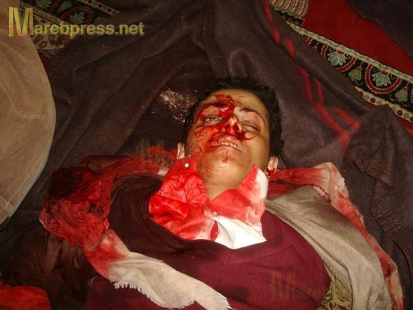 الى من لدية ضمير في اليمن ... هناك مأساة حقيقه في جامعه صنعاء .. والاعلام يضللكم ... اتقوا الله 13633.1300466251.66