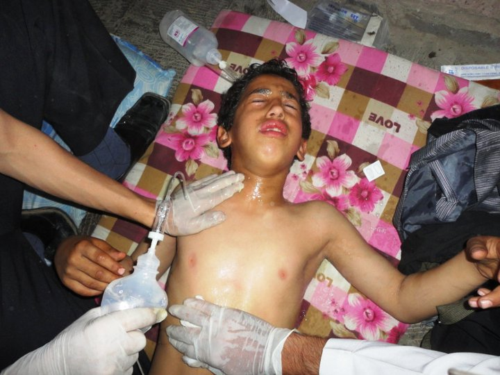 ضحايا اعتداء الامن المركزي كنتاكي بصنعاء