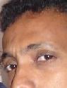 ياسر عبد الباقي