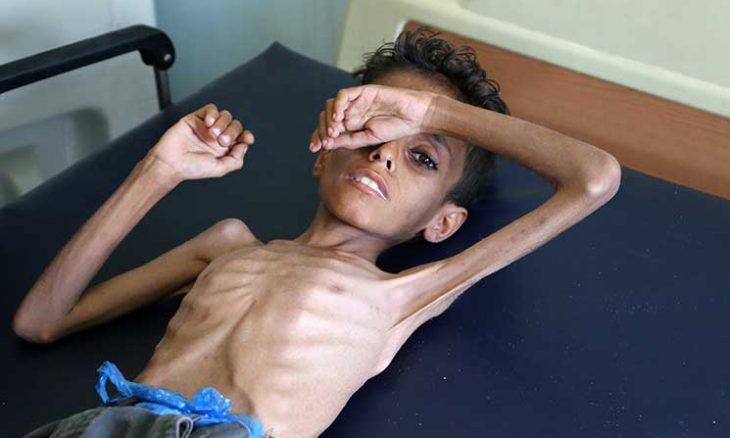 صحيفة أمريكية تدق ناقوس الخطر بسبب الاوضاع باليمن