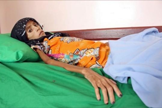 أكثر من 5 ملايين شخص في اليمن يعيشون بمناطق يصعب إليها